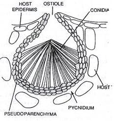 Fig: Pycnidium