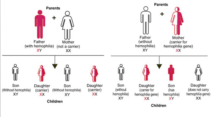 Hemophilia Inheritance